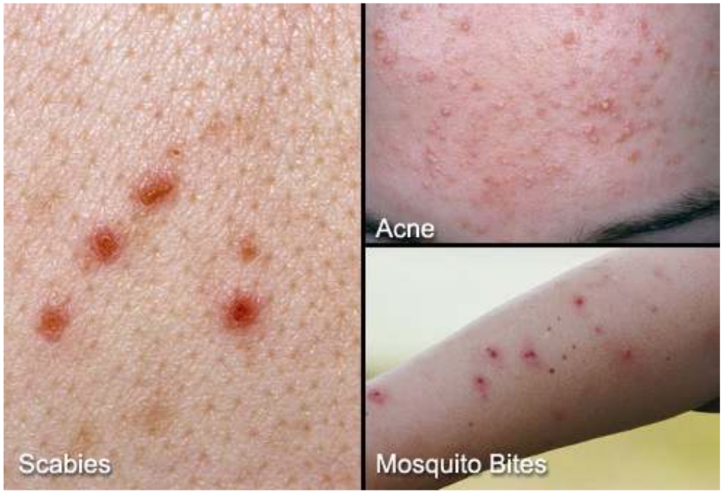Scabies Home Remedies, Treatment, and Images