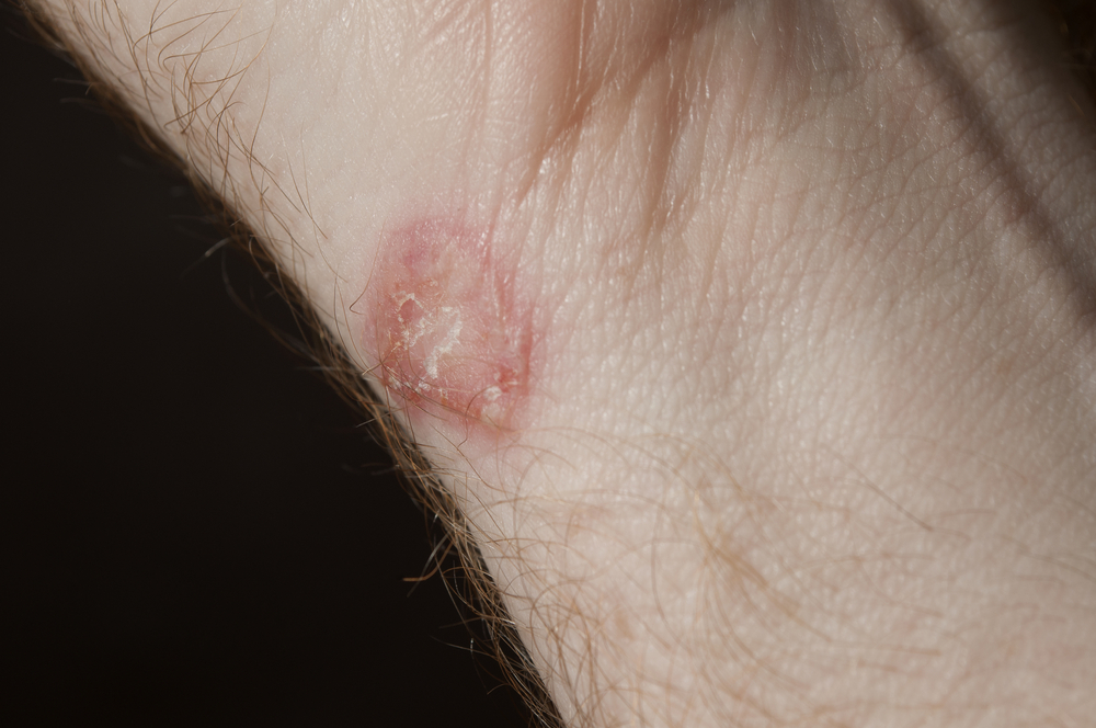 10 Best Natural Methods to Treat Ringworm Infection!!