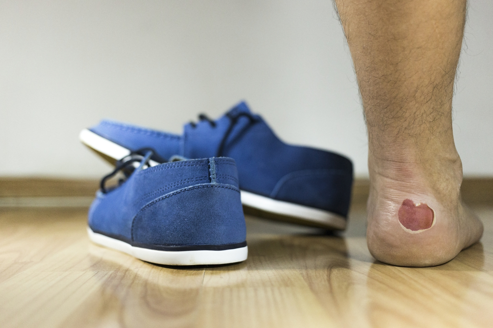 4 Home Remedies to Treat Foot Blisters at Home