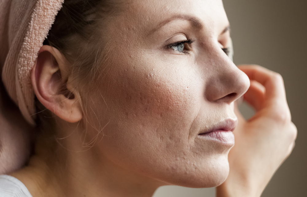 4 Types Of Rosacea That One Must Know