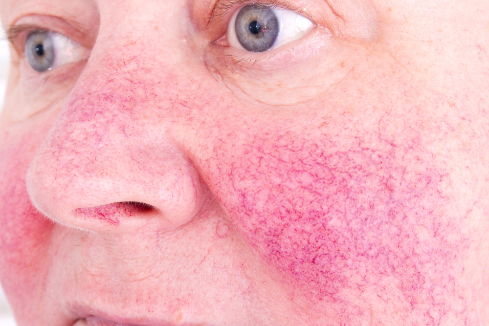 4 Ways to Get Rid of Rosacea Naturally