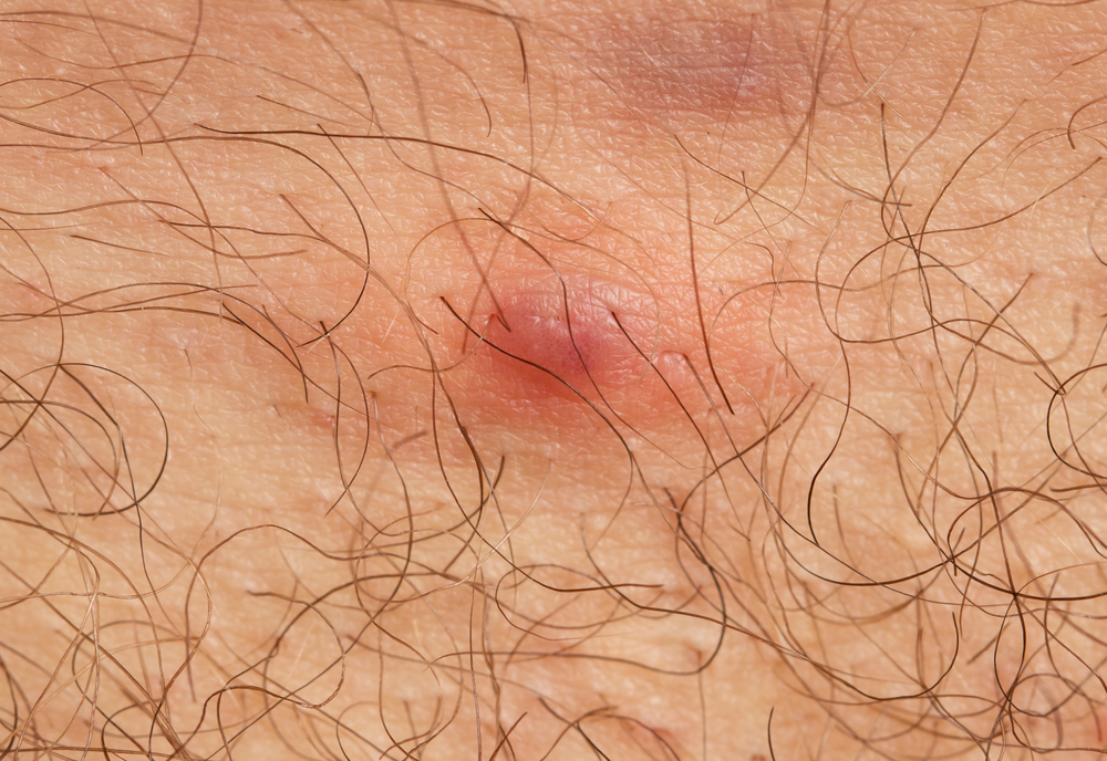5 Home Remedies You Must Try for Boils
