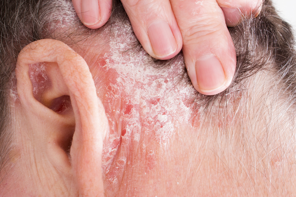 7 Successful Home Treatments For Psoriasis