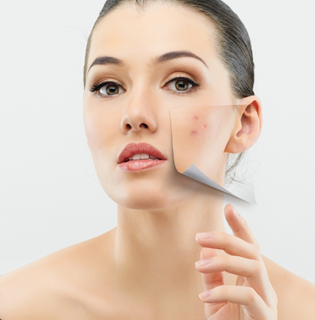7 Natural Acne Treatments That Work!