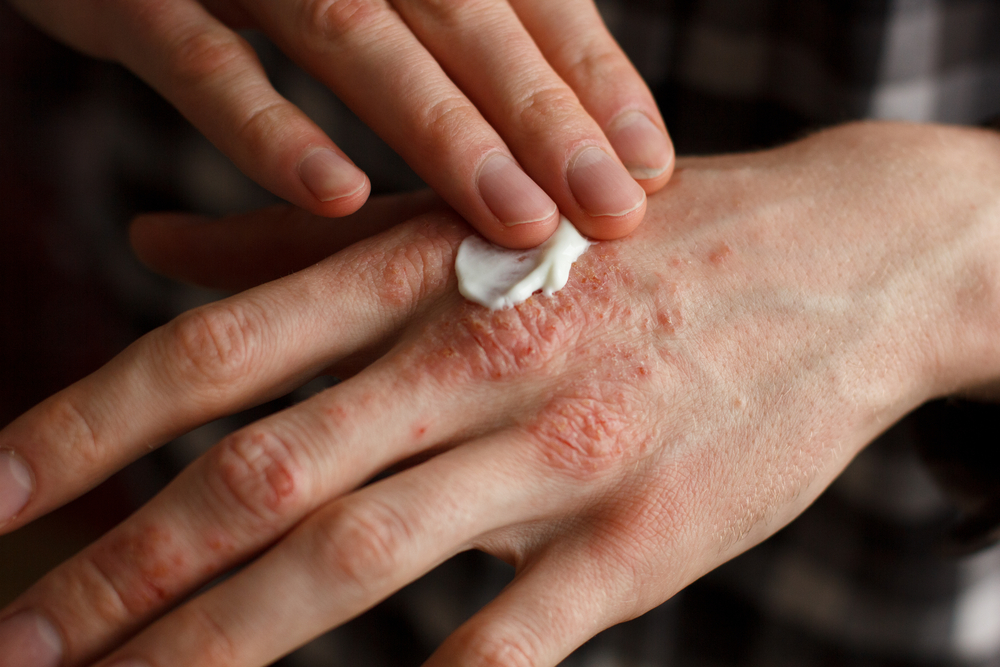 8 Effective Tips to Care for Your Psoriasis At Home