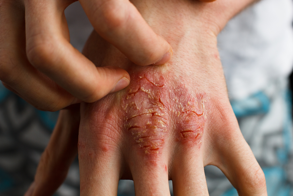 A Safe And Efficient Natural Way For Psoriasis Sufferers
