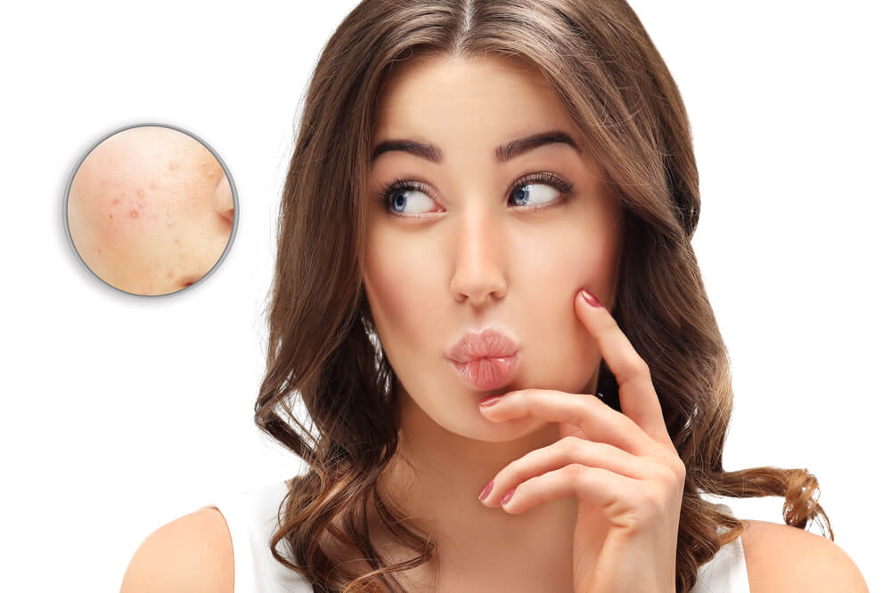 Adult Acne Rosacea; Overview With Home Remedies