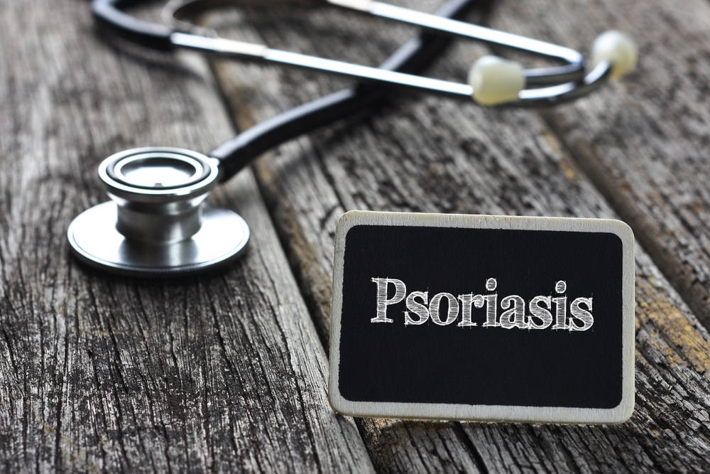 Alternative Treatments For Psoriasis