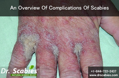 An Overview Of Complications Of Scabies