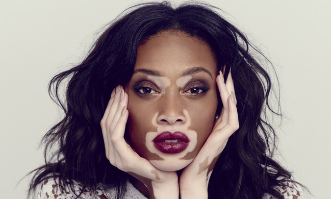 Beauty with Vitiligo