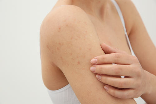 Best Scabies Treatment