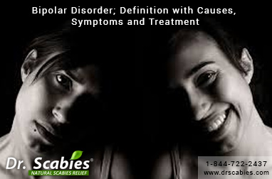 Bipolar Disorder; Definition with Causes, Symptoms and Treatment