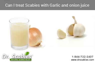 Can I treat Scabies with Garlic and onion juice