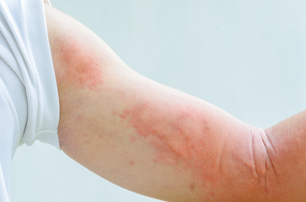 Causes Of Hives That One Must Know!