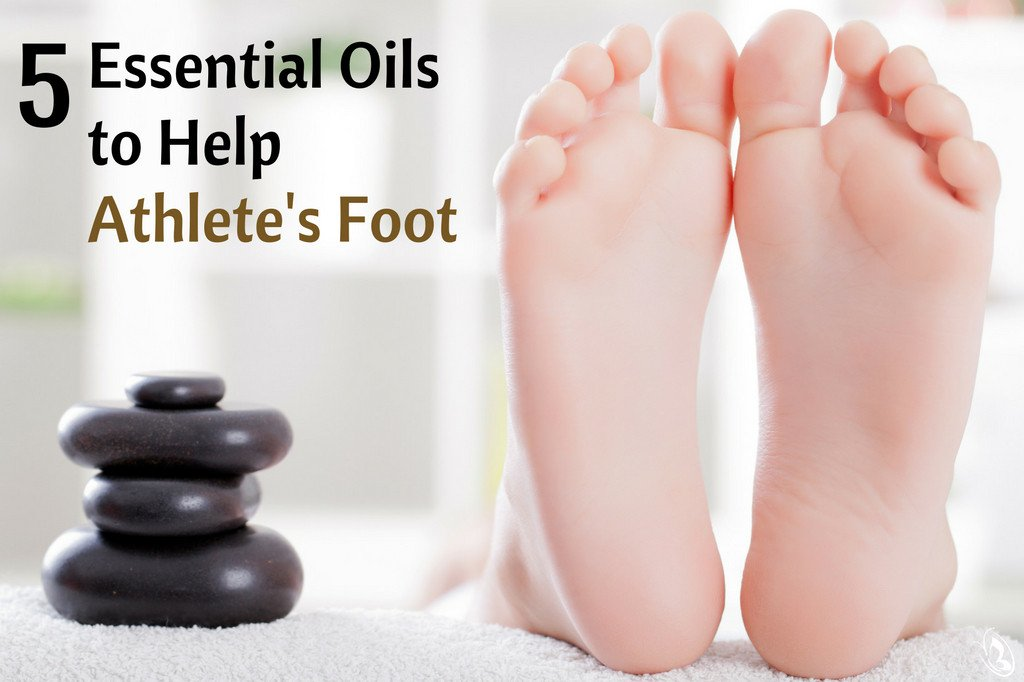 Certain Essential Oils to treat Athlete's Foot Naturally!