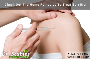 Check Out The Home Remedies To Treat Bursitis!