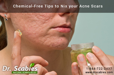 Chemical-Free Tips to Nix your Acne Scars