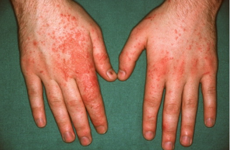 Contact dermatitis- A skin condition you need to know about