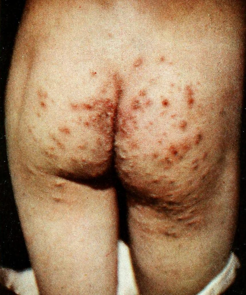 Contagious skin infestation by scabies mites