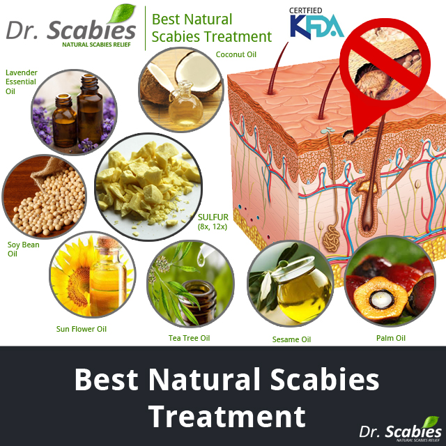 Scabies Best Natural Treatment- Dr. Scabies