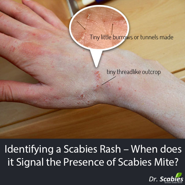 Dr. Scabies rashes and symptoms