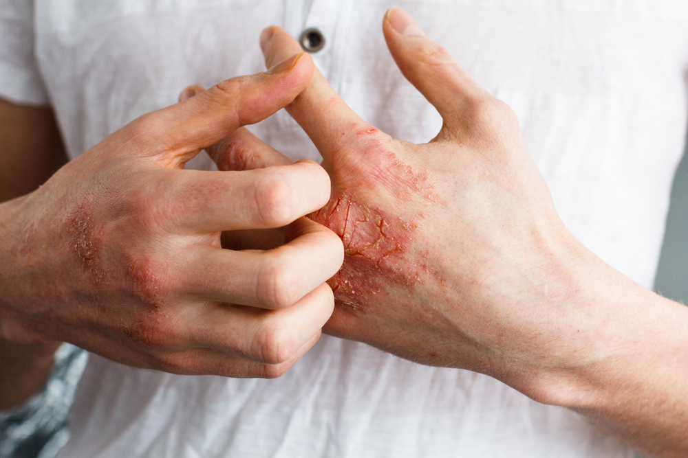 Ease Your Eczema Condition With These 5 Natural Remedies!