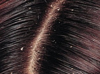 Get to know about the long-term effects of untreated Head lice