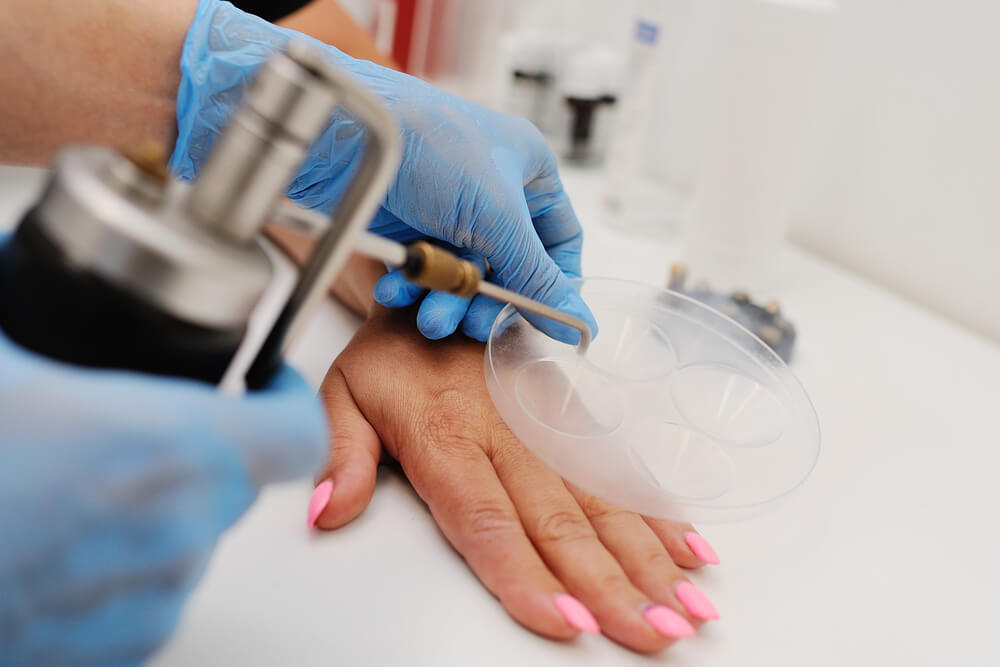 Get Rid Of Unwanted Warts