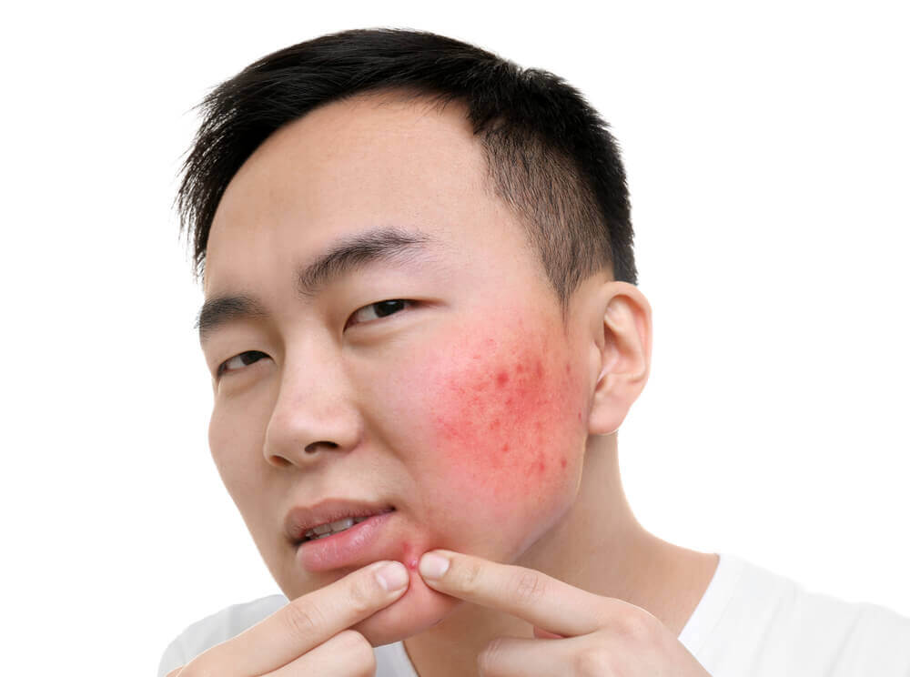 How to Get Rid of a Zit Overnight?