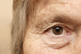 Got wrinkles? Try these natural home remedies