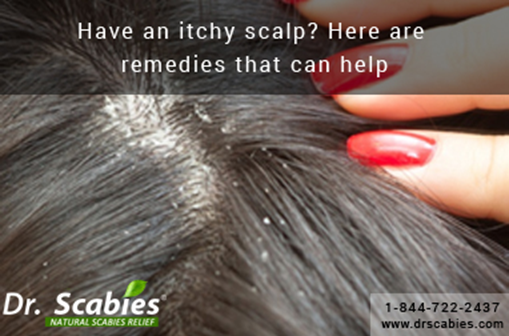 Have an Itchy Scalp? Here are Remedies that can Help