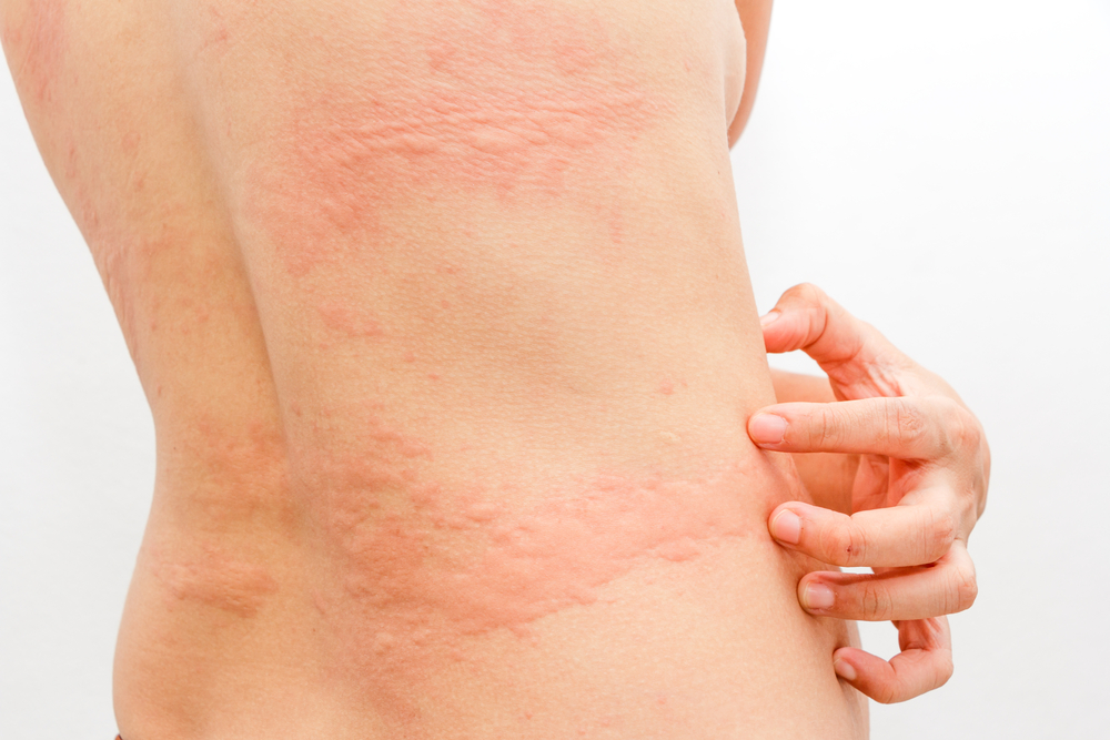 Hives; Get Escape From This Maddening Skin Condition