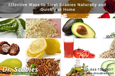 Home Remedies That Kill Scabies