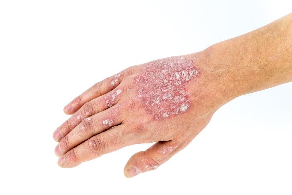 How To Cure Psoriasis Naturally In Children?