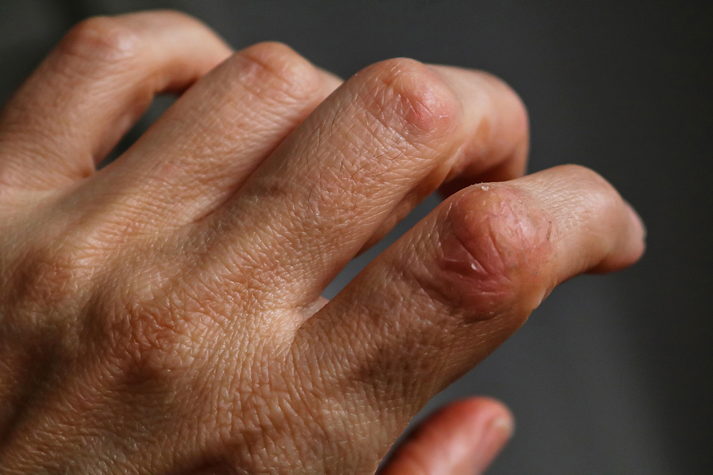 How To Reduce The Effects Of Psoriasis Naturally?