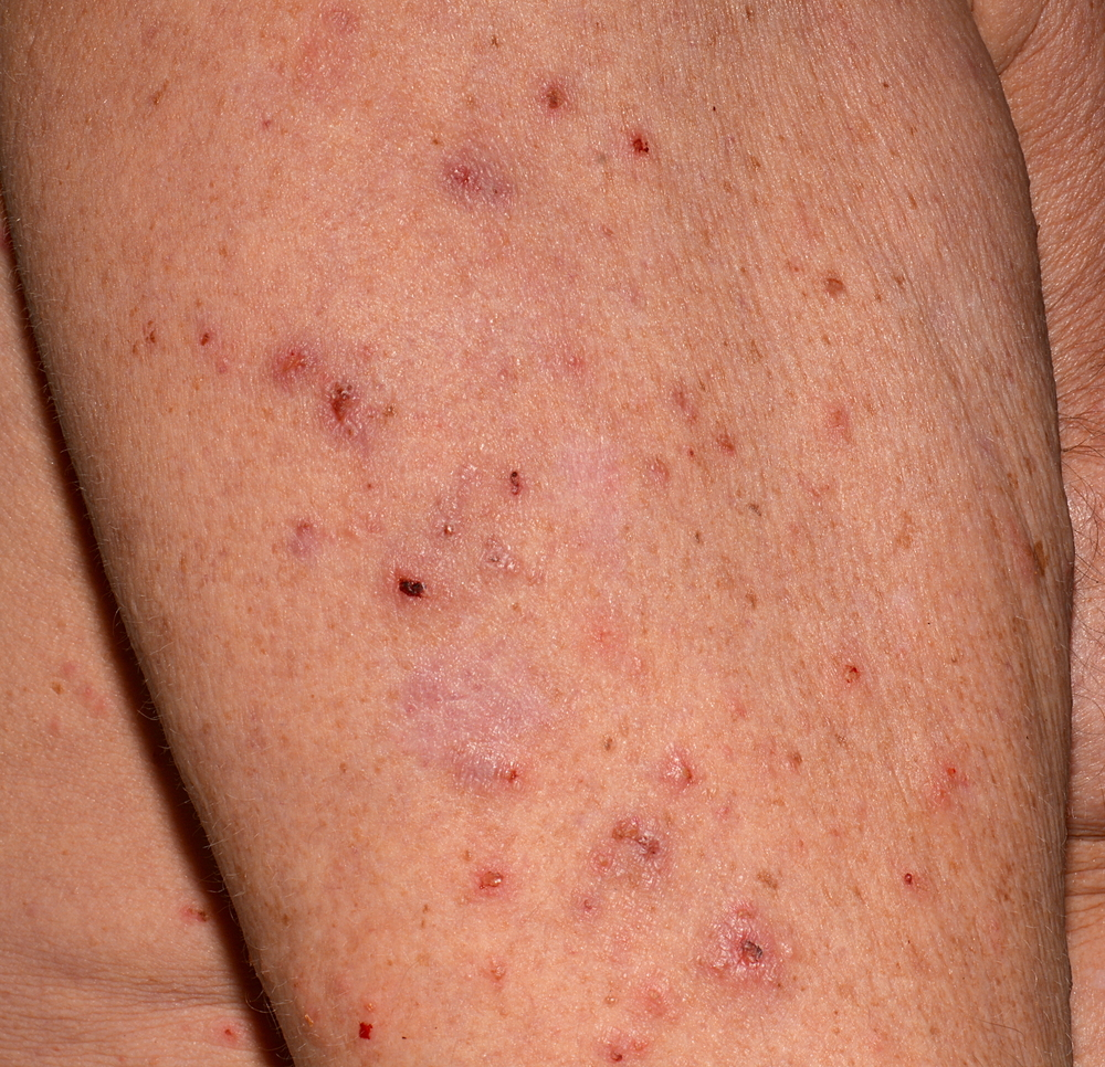 How to Destroy Scabies Mites Naturally & Effectively?