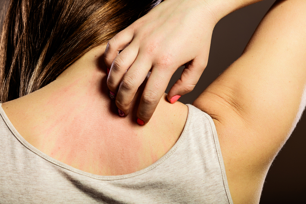 How to Get Rid of Itchy Skin with Home Remedies