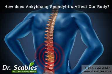 How does Ankylosing Spondylitis Affect Our Body?