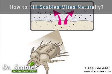 How to Kill Scabies Mites Naturally?