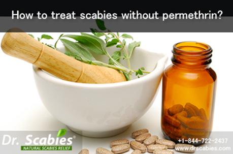How to Treat Scabies without Permethrin?
