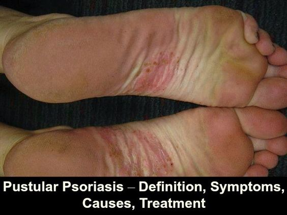 Know the symptoms, causes, and treatment of Psoriasis