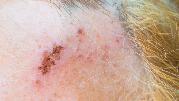 Learn the warning symptoms of shingles
