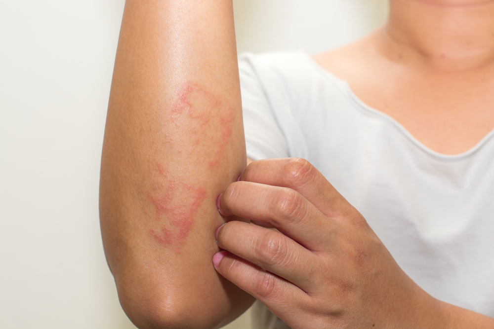 Let Go Away Allergic Dermatitis In A Natural Way!