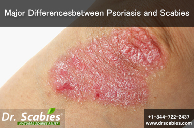 Major Differences between Psoriasis and Scabies