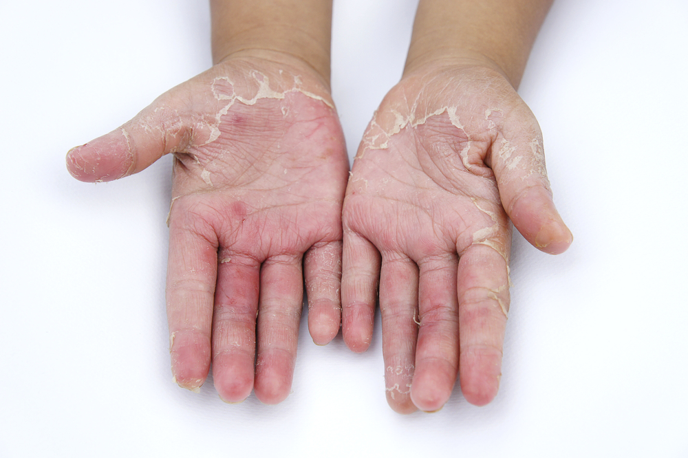 Preventing Measures to Fight Eczema