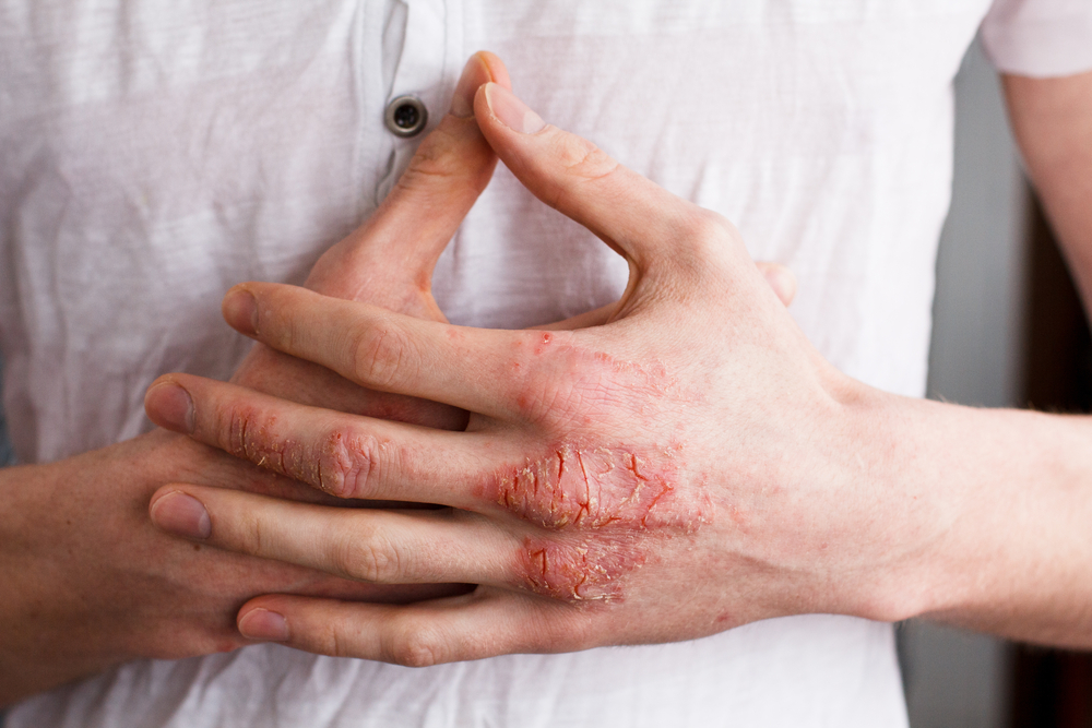 Moisturizing Guide for Eczema: How to Choose Right Moisturizers?