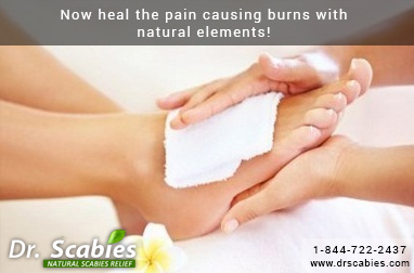 Now Heal the Pain Causing Burns with Natural Elements!