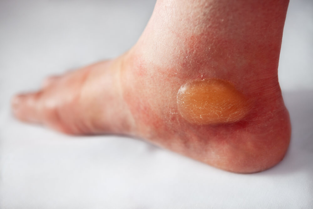 Pick Any Of These 7 Home Treatments & Quickly Heal Blisters