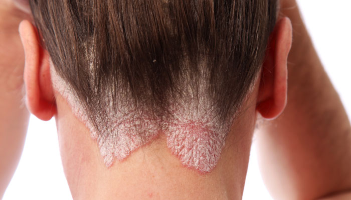 Psoriasis - How To Manage
