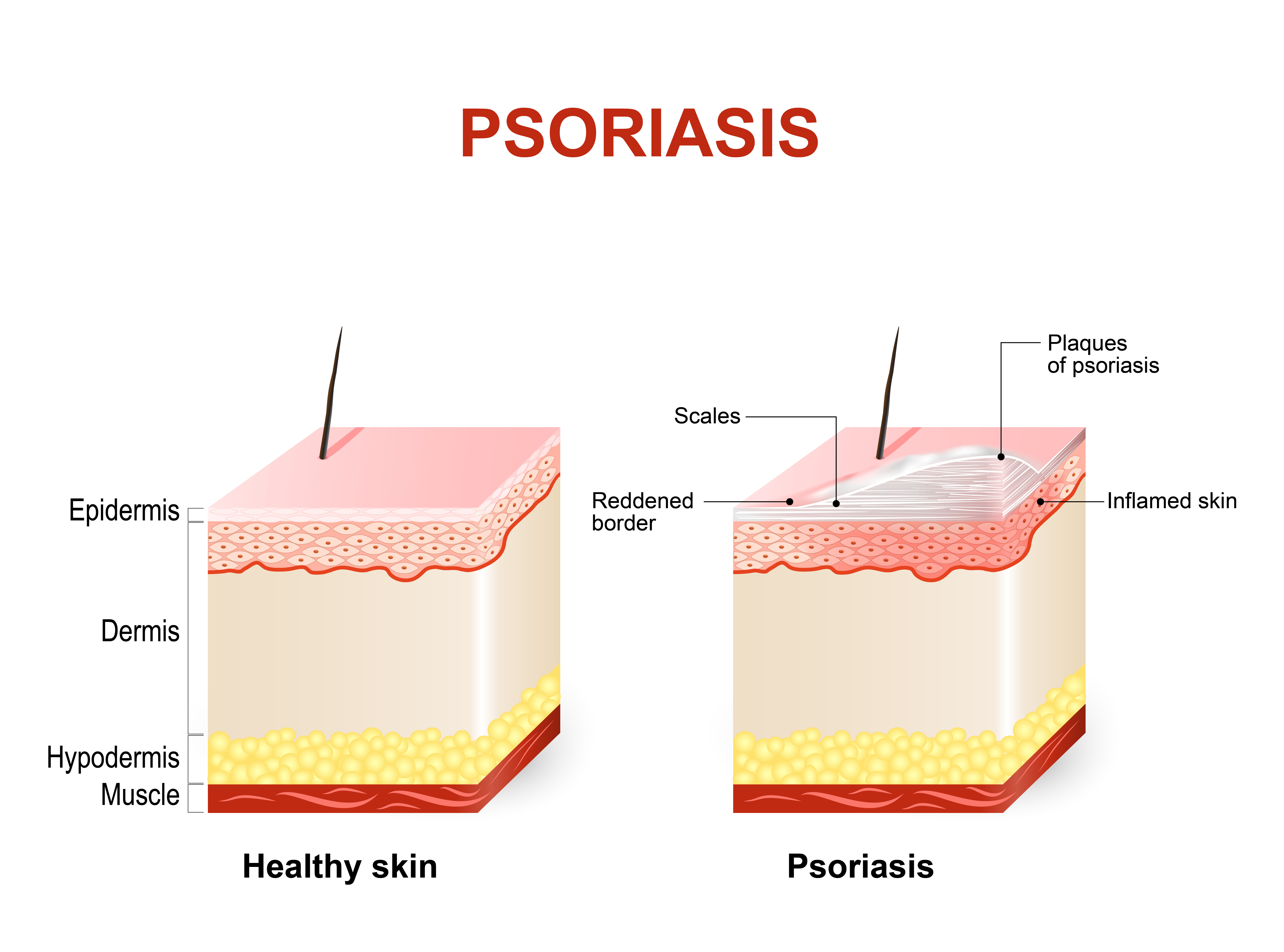 Psoriasis Treatment photo